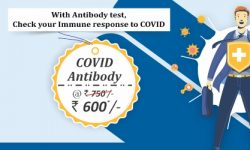 Thyrocare Package   Covid Antibody Test